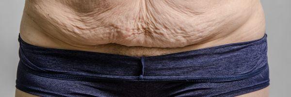 A obesidade é uma doença e seu plano de saúde sabe disso (apesar de fingir que não)