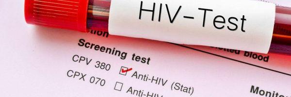 É crime transmitir o vírus HIV para outra pessoa?