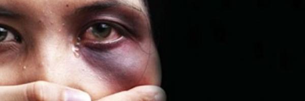Projeto de Lei na Câmara quer direito de cirurgia plástica para mulheres agredidas